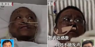 This image shows Chinese Doctors Skin Turns Black After Surviving Coronavirus